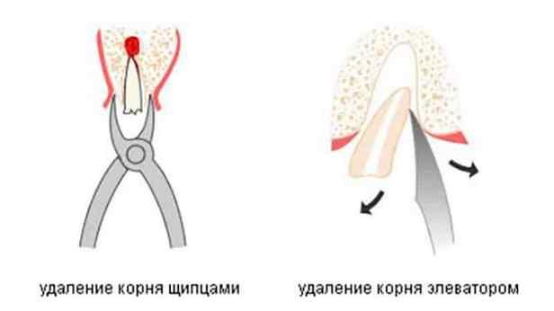 Удаление зубов прямым элеватором концевик на транспортер