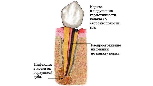 Удаления зуба при воспалении корня зуба